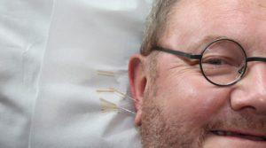acupuncture-364613_960_720-800x445